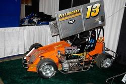 TQ - a three-quarter midget.  See it run at Atlantic City this weekend.