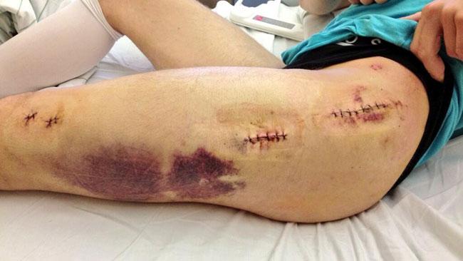 Jonathan Rea mostra su Twitter le sue cicatrici
