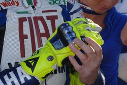 The injured hand of Valentino Rossi